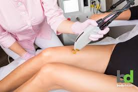 brazilian laser hair removal decide