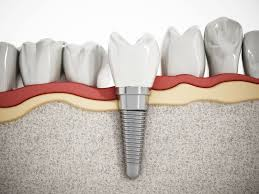There Are 2 Types of Dental Implants. Which is Best for You?