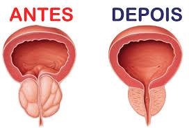 Vitaprost Tratamento para Próstata