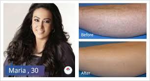 permanent laser hair removal for men
