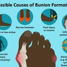bunions symptoms causes diagnosis