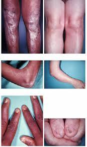 nail patella syndrome symptoms