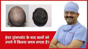 grow after hair transplant hairmd