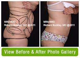 laser liposuction sparta nj laser