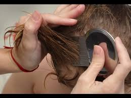 how to get rid of nits you