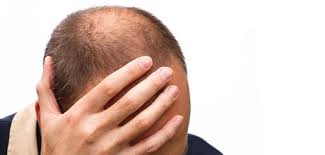 hair loss stress 5 major causes with