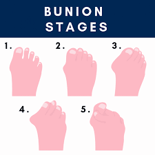 10 step guide for treating bunion pain