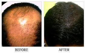 est hair transplantation clinic in