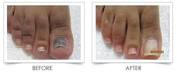 laser skin center nail fungus treatment