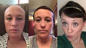 52 photos of hair loss and recovery