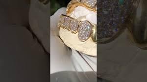 custom 8 on 8 natural vs diamond grillz