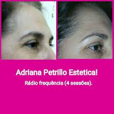 Adriana Petrillo - फोटोहरू | Facebook