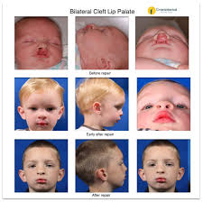 cleft lip and palate gallery earwell