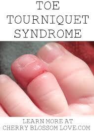 toe tourniquet syndrome cherry