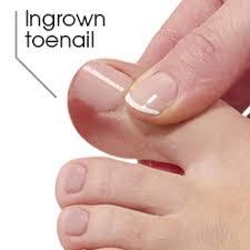 treat ingrown toenails