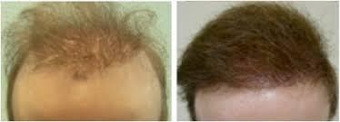 best fue hair transplant surgeon