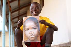 Glasgow University helps improve cleft palate surgery in developing  countries using the power of maths to map facial symmetry | HeraldScotland