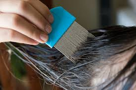 natural remes for head lice thriftyfun
