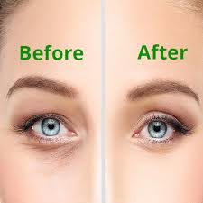 cosmetic procedures ophthalmic