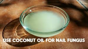 coconut oil for treating toenail fungal