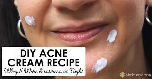 diy acne cream homemade acne treatment