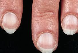nail disorders what nails say about