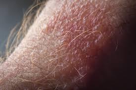 sumac rashes spread poison ivy rash