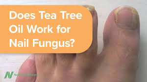 dilute tea tree oil for toenail fungus