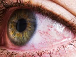 warning signs that your red eye could