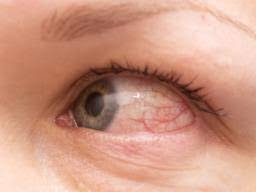 how long does pink eye last 7 signs