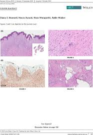 Dermatofibrosarcoma protuberans with features of giant cell ...