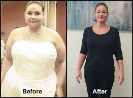 first doctors cal weight loss