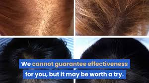 will ire laser hair growth system