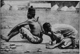 History of Cupping - | Cupping therapy, Wet and dry, Africa