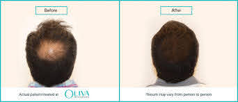 prp treatment for hair loss cost and