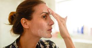ling skin on face causes and treatment
