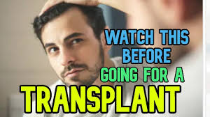 hair transplant check this alternate