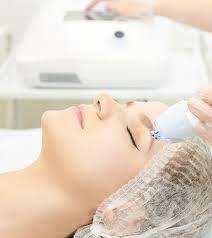 microdermabrasion what is it