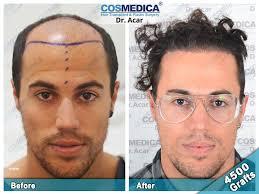 hair transplant turkey hair