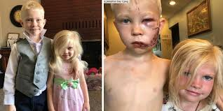 6-year-old hero Bridger Walker selflessly saved his little sister ...