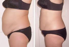 laser lipo non invasive liposuction