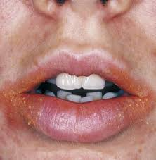 common causes of recur lip rashes