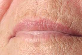 how to get rid of lip lines howstuffworks