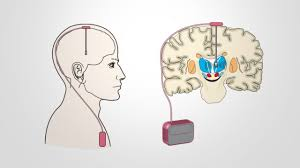 Deep brain stimulation for Parkinson's Disease and movement disorders