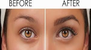 eyebrow hair transplant in poland