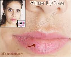 natural home remes for chapped lips