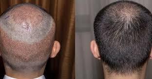 hair loss treatment vcare trichology