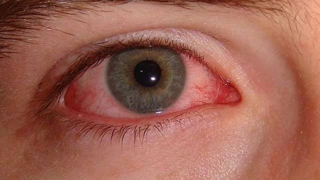 """Image result for Penyakit Mata Yang Disebabkan Bakteri"""""""