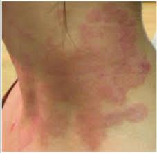 thyroid homeopathy treatment