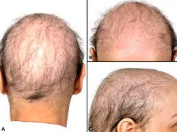 alopecia in patients with t cancer